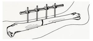 stabilizatory kości: klamrowy