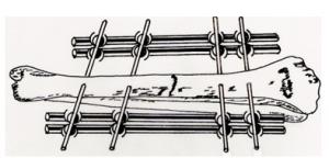 stabilizatory kości: ramowy
